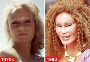 Catwoman (Jocelyn Wildenstein) Plastic Surgery Disaster ...