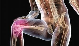 Коксартроз симптомы степени лечение артроз тазобедренного сустава его причины 2016