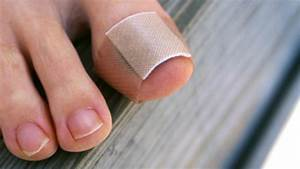 9 Surprising Triggers Of Gout Pain