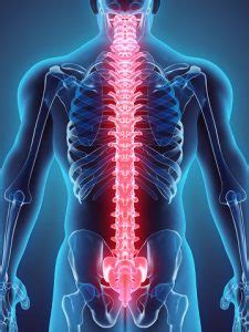 Spinal stroke: Causes, symptoms and treatment