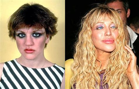 Pin on Botox gone bad/celebs with out make up