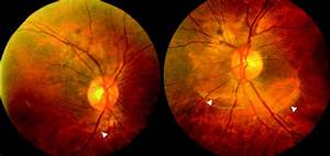 Serous Retinal Detachment in Hypertensive Posterior ...
