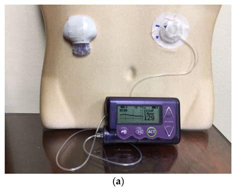 jcm  full text  overview  insulin pumps