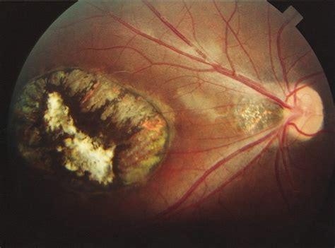 macular coloboma od retina image bank