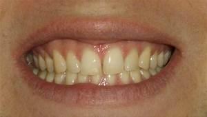 Lèvre Enflée Bouton : boutons blanc sur les levres de la bouche acn psoriasis et probl mes de peau forum sant ~ Medecine-chirurgie-esthetiques.com Avis de Voitures