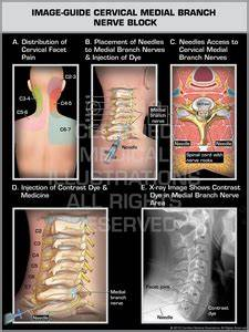 Cervical Facet Block  Rhizotomy