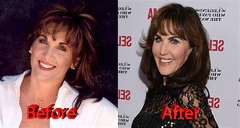 Robin McGraw Before and After | Robin mcgraw plastic