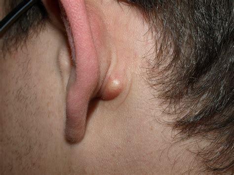 Verstopte Talgklier Atheroomcyste Talgkliercyste