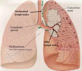 Small Cell Lung Cancer Symptoms
