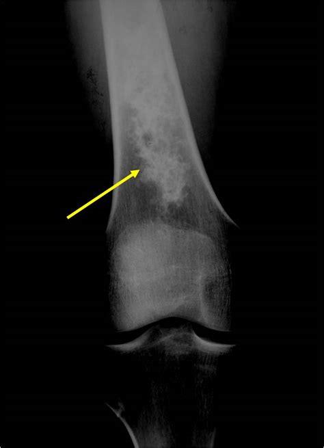 enchondroma bone femur tumor tumors ray pathology enchondromas benign growth soft long cartilage