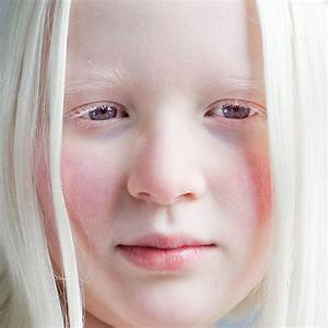 ALBINOs & THE TROUBLES THEY FACE…. | HearSayGh