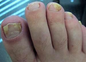 Лечение грибка на ногах лазером в пензе