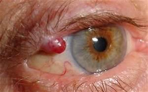 Benigni: Benign Granuloma