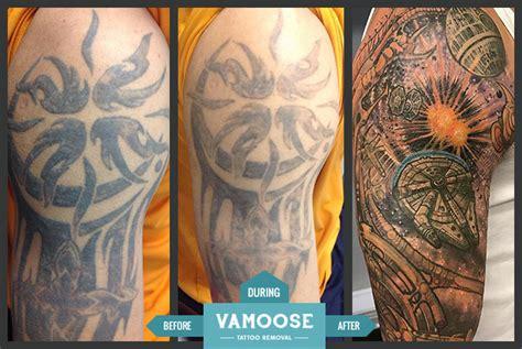 Full & Half Sleeve Tattoo Removal