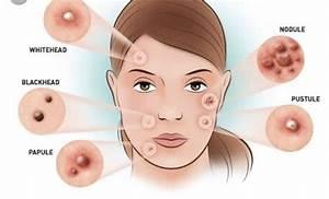 Skin Sight Acne Vulgaris U2019 Today Science U2019 Medium