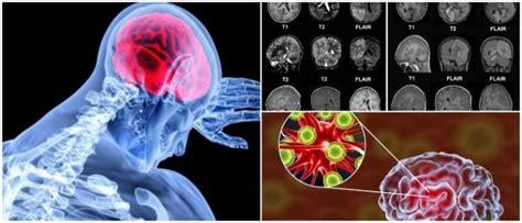 encefalitis causas tipos sintomas diagnostico