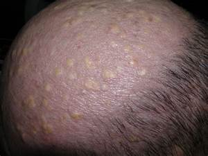 Scalp Cyst Pictures