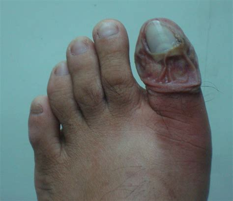 infected toenail pictures awesome nail