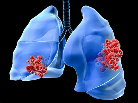 A First in Lung Cancer: Immunotherapy Improves Survival