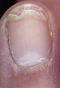 От какого грибка слоятся ногти на ногах