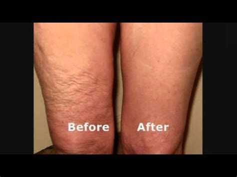 skinnies instant lifts  thighs hide loose thigh skin