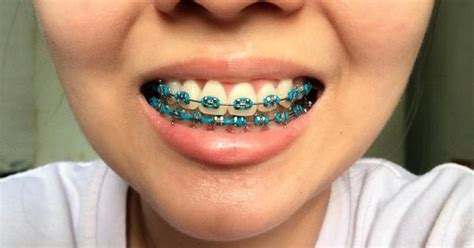 best colors for braces what color braces should i get what color braces should