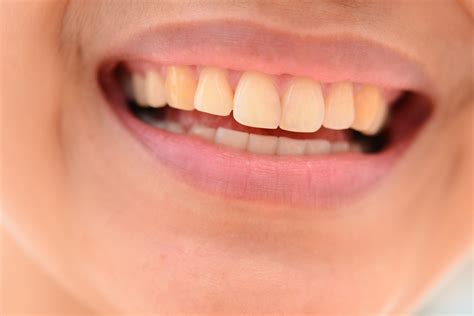 How to Have a Great Smile: 6 Steps (with Pictures) - wikiHow