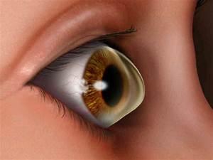 An Affliction Of The Cornea Gets A Closer Look   Npr