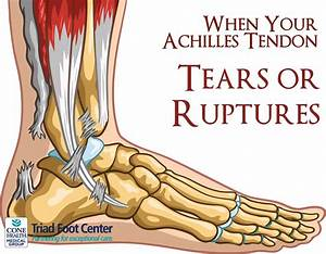When Your Achilles Tendon Tears Or Ruptures
