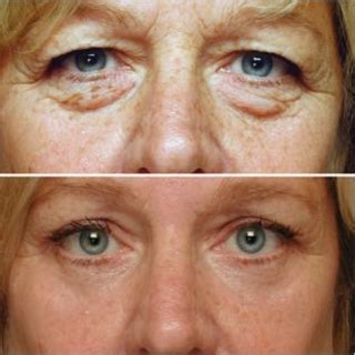 Can I cure puffy eyes and drooping lids with eyelift