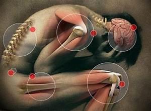 Защемление седалищного нерва в тазобедренном суставе снятие боли
