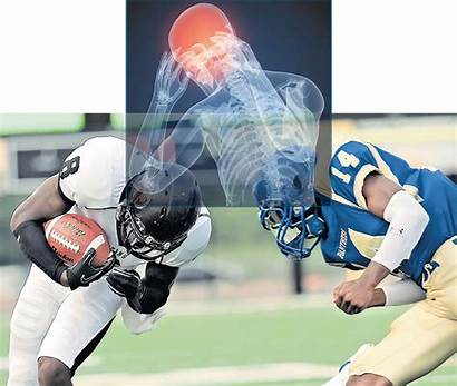 Concussion Athletes Head Trauma Young Football Players