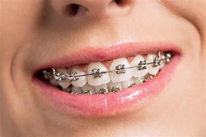 Happy Success Smile With Perfect Teeth And Braces Stock ...