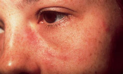Symptome multiple sklerose schmerzen