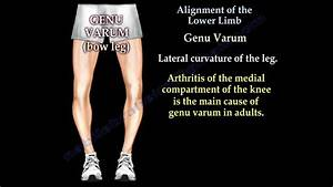 Alignment Of The Lower Limb