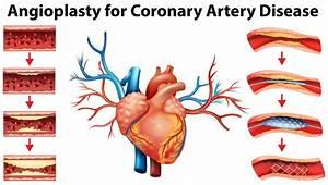 Coronary Intervention
