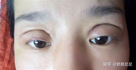 割双眼皮有后遗症吗? - 知乎