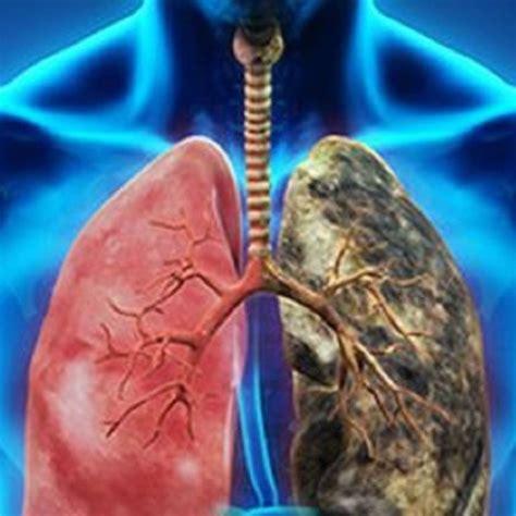 cuidate del cancer de pulmon martha debayle  radio mexico