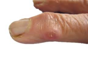 Ganglion Cyst On Finger