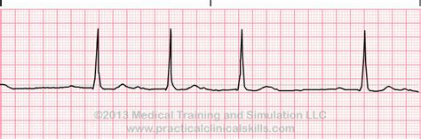 degree heart block type  ekg answer page