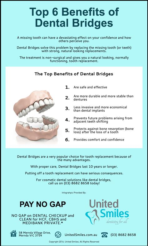 Top 6 Benefits Of Dental Bridges  United Smiles