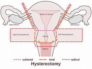 File Scheme Hysterectomy-en Svg