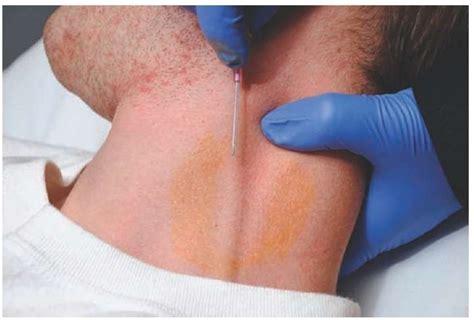 Intravenous Access (clinical Essentials) (paramedic Care