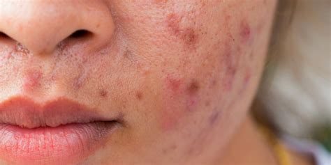 foods    giving  acne business insider