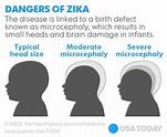 Zika Q&A: Congress struggles to reach deal on funding ...