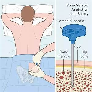 Why is a bone marrow transplant so expensive, even though ...