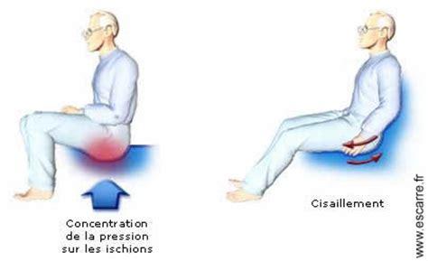 douleur au coccyx en position assise 28 images les escarres ergoccyx coussin de soulagement