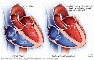 Aortic Valve Disease - Symptoms And Causes