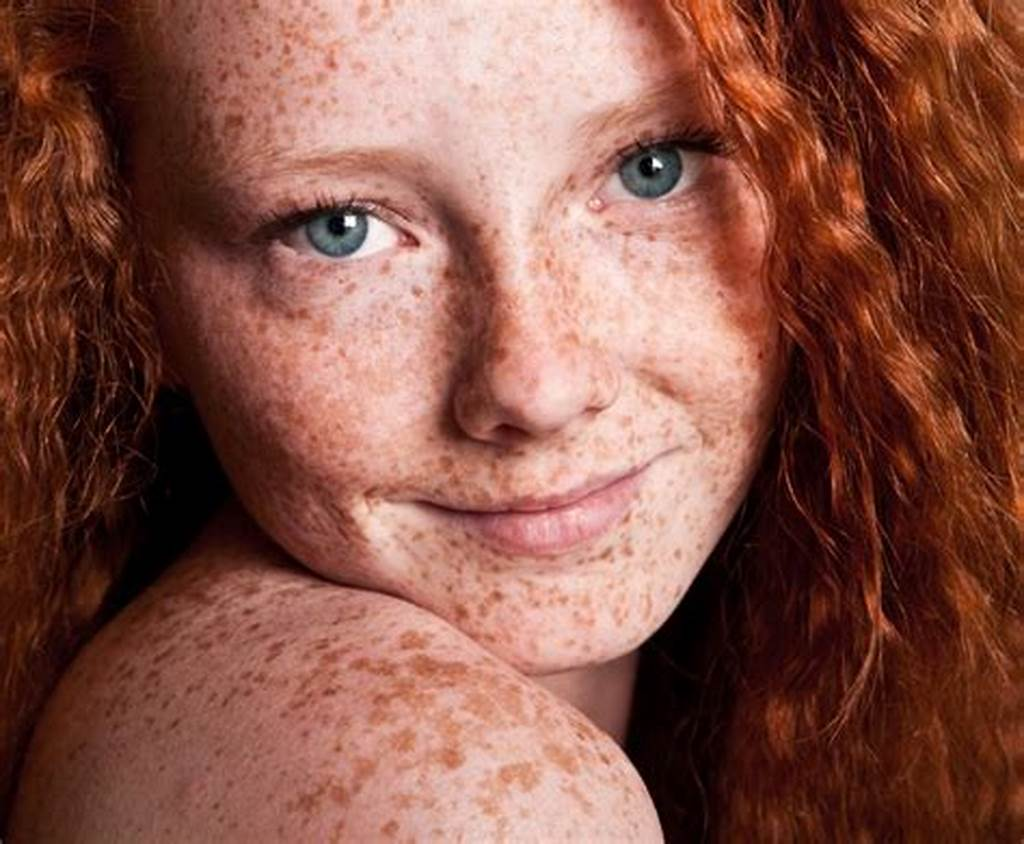 #Why #Do #Redheads #Get #Melanoma #More #Frequently?