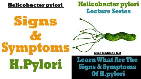 bactérie helicobacter pylori symptomes the signs and symptoms of helicobacter pylori infection